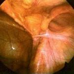 visão interna de uma hérnia observe o orifício no canto superior direito